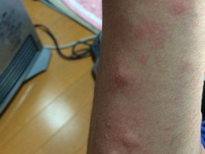 副住職の蕁麻疹